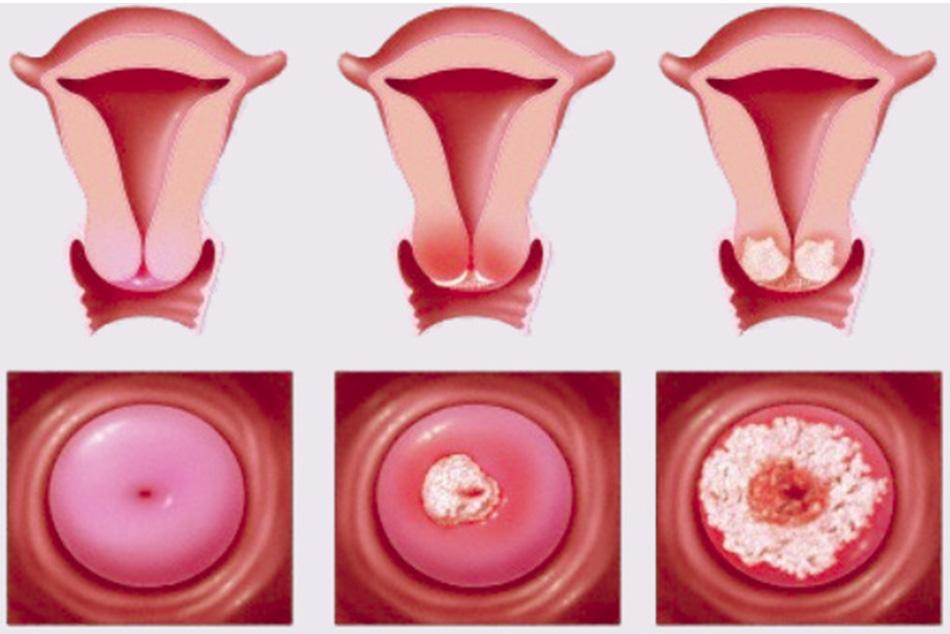 Viêm cổ tử cung nếu không điều trọ kịp thời có thể sẽ gây biên chứng