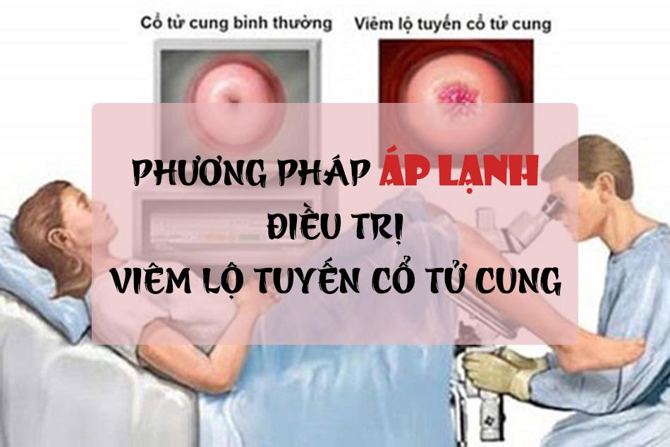 Điều trị bằng phương pháp áp lạnh trong viêm lộ tuyến cổ tử cung